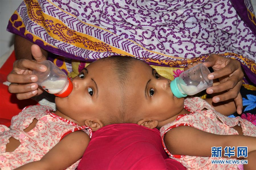 (XHDW)(1)孟加拉國頭部連體女嬰將準備接受分離手術