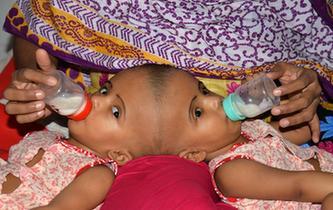 孟加拉國頭部連體女嬰將準備接受分離手術