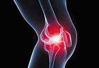 甲減患者多動護關節